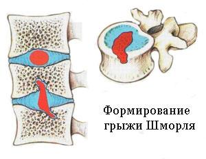 грыжа Шморля позвоночника