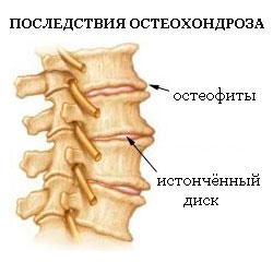 Корешковое защемление нерва грудного отдела позвоночника