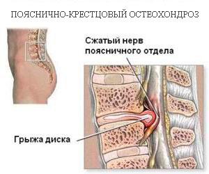 Хондроз поясничного отдела позвоночника: симптомы 94
