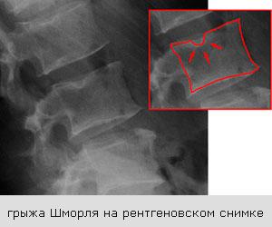 рентгеновский снимок грыжи Шморля
