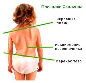 Сколиоз 1 степени у детей лечение