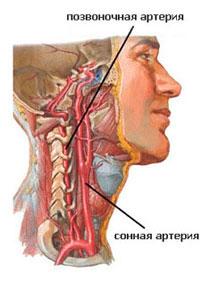 Головная боль при шейном остеохондрозе: причины и лечение