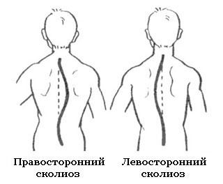 Левосторонний сколиоз грудного отдела позвоночника