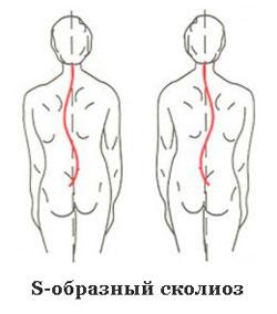 виды s-образного сколиоза