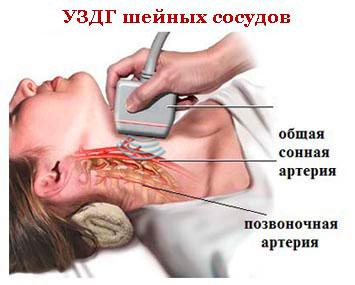 Остеохондроз шоп с спазмой позвоночной артерией как вылечить