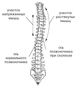 оси позвоночника при сколиозе