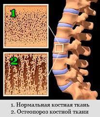 остеопороз костной ткани
