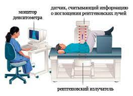 устройство рентгеновского денситометра