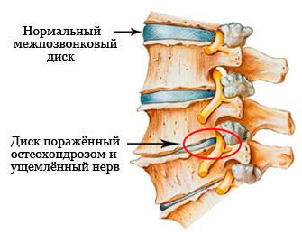 защемление нерва при остеохондрозе