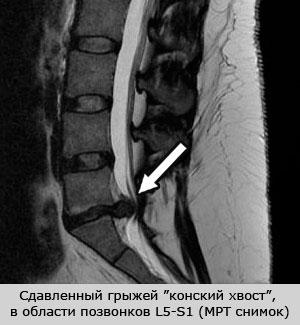 сдавленный грыжей конский хвост на МРТ