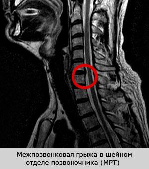 17 недель беременности боль в спине