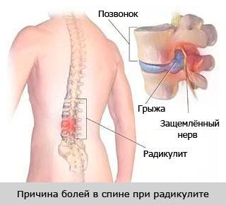 причина болей в спине при радикулите